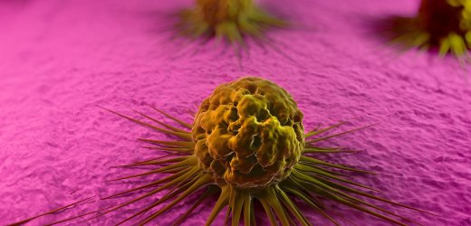 Cancer cells, computer artwork. The uneven surface and cytoplasmic projections are characteristic of cancer cells. --- Image by © Sciepro/Science Photo Library/Corbis